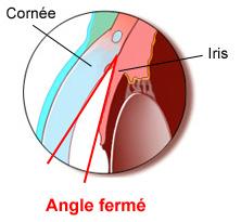 angle-ferme-glaucome