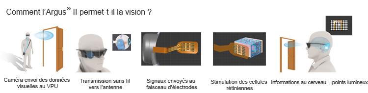 implant r tinien argus 2 rembours par la s curit sociale le guide de la vue. Black Bedroom Furniture Sets. Home Design Ideas