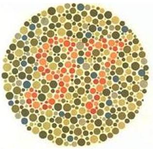 les maladies des yeux et les d fauts visuels chez l 39 enfant le guide de la vue. Black Bedroom Furniture Sets. Home Design Ideas