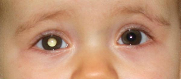R tinoblastome maladie de l 39 oeil chez l 39 enfant guide vue for Interieur yeux rouge