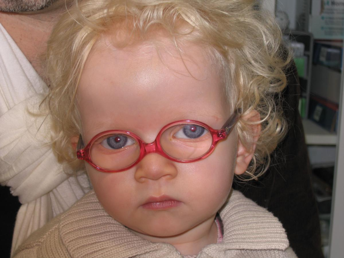 Probleme Yeux Astigmate Les Symptmes De L Albinisme Le