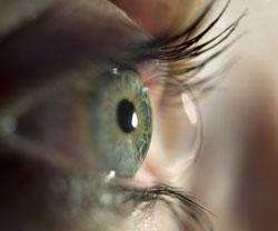 Les lentilles de contact   les questions les plus posées   Le Guide ... 2f38faed150a