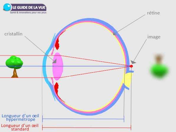 exemplu de hipermetropie)