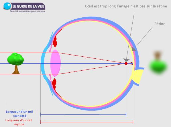 schéma de l'oeil myope